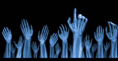 An xray of hands