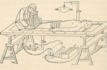 Line drawing of a patient lying down to be X-rayed taken from Radiography by S R Bottone
