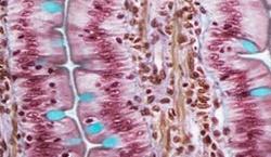 Gastrointestinal imaging scan