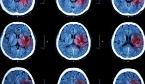 neuropromojpg