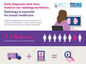 Breast imaging saves lives