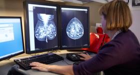 breast_imaging.png